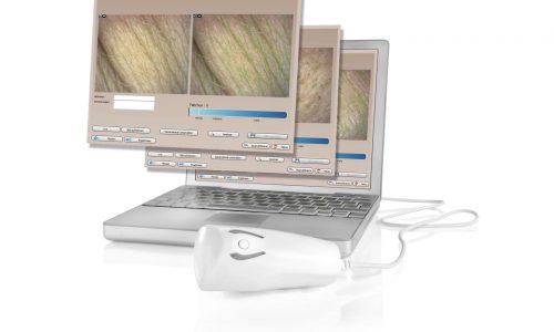 Derma Visualizer Monitor_300